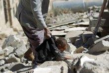 حقوق-الانسان-فی-الیمن - الأمین العام: إلحاح الأزمة الإنسانیة فی الیمن لا یترک مجالا للرضا عن الذات